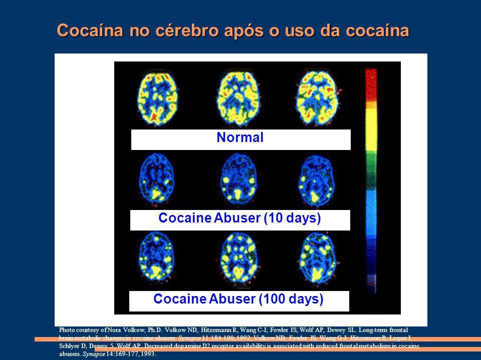 Cocaína no cérebro após o uso da cocaína