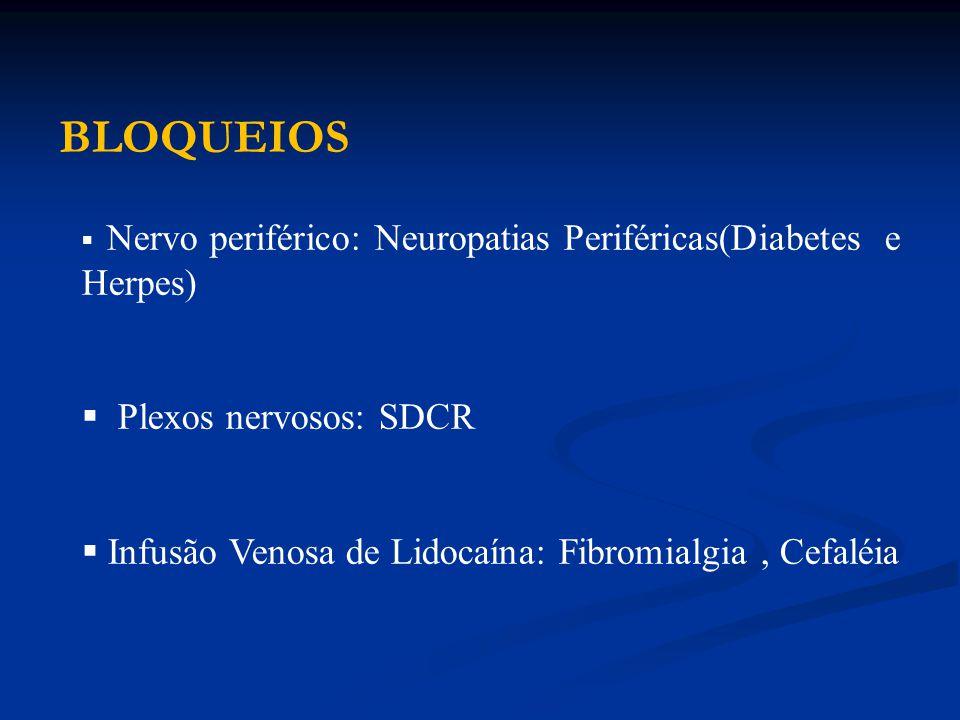 BLOQUEIOS Plexos nervosos: SDCR
