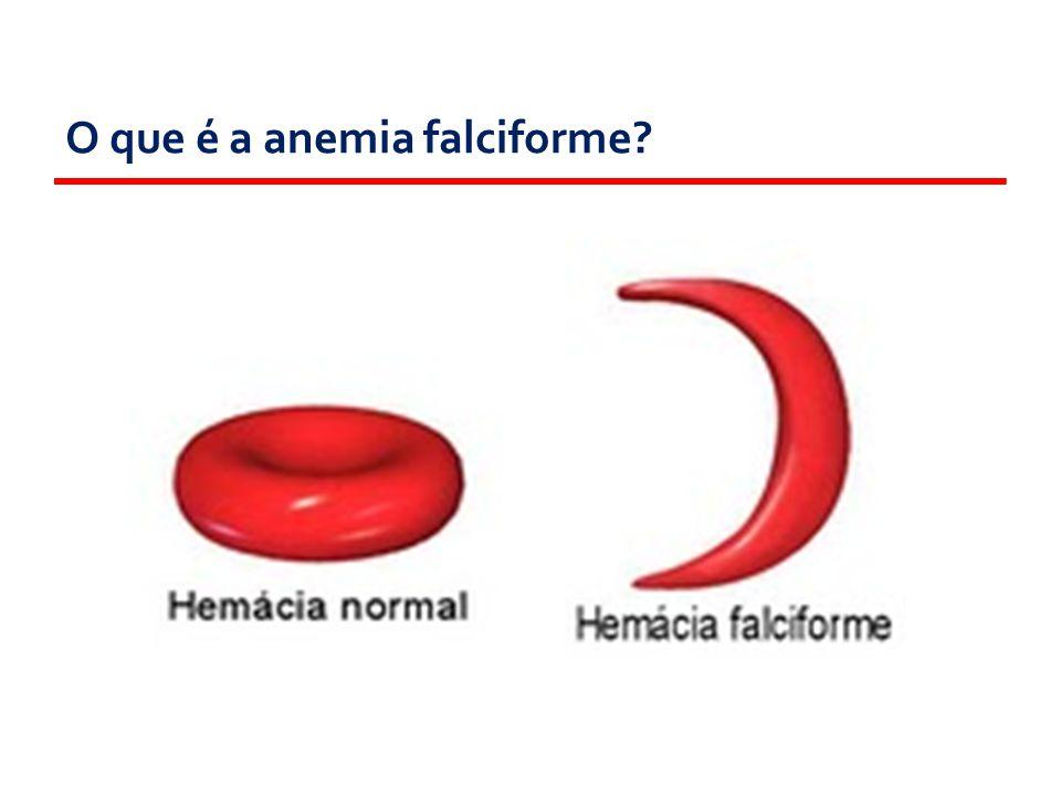 O que é a anemia falciforme