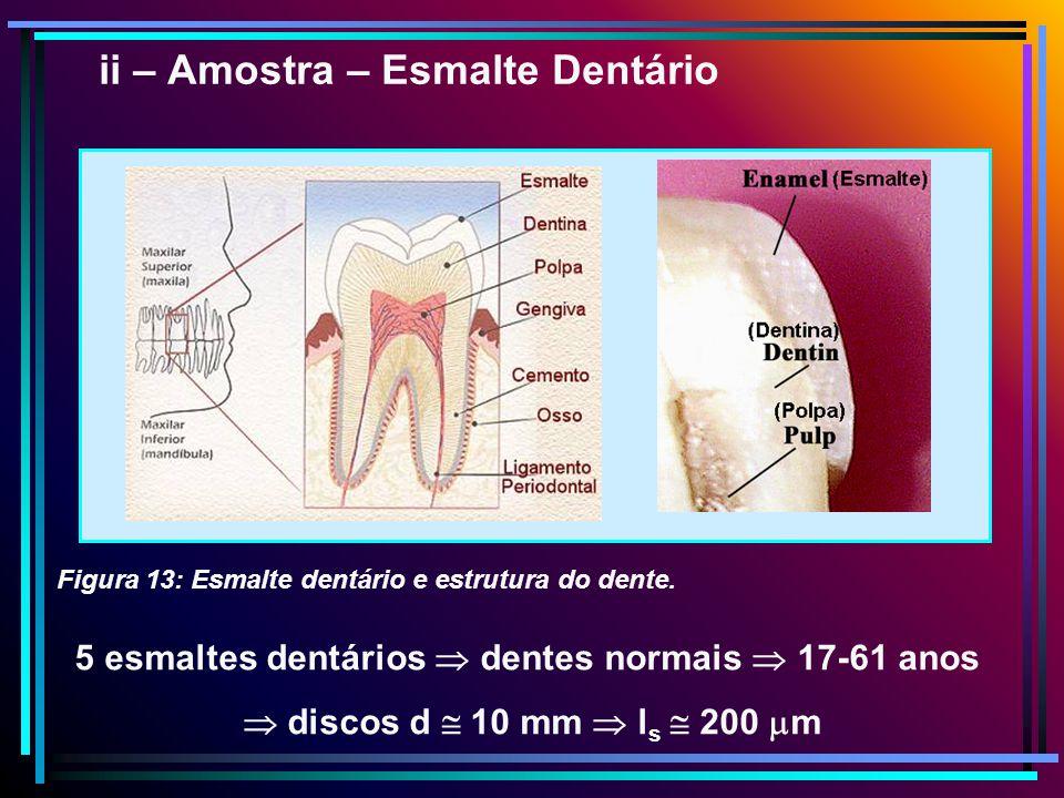 5 esmaltes dentários  dentes normais  17-61 anos
