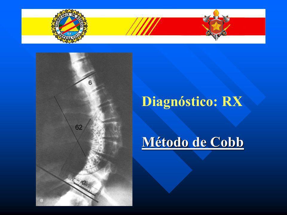 Diagnóstico: RX Método de Cobb