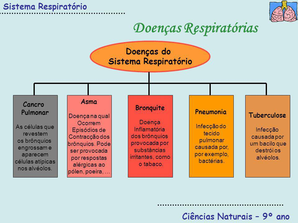 Doenças Respiratórias Ciências Naturais – 9º ano