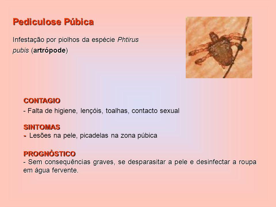 Pediculose Púbica Infestação por piolhos da espécie Phtirus pubis (artrópode) CONTAGIO. - Falta de higiene, lençóis, toalhas, contacto sexual.
