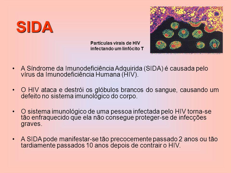 SIDA Partículas virais de HIV. infectando um linfócito T.