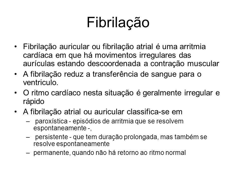 Fibrilação