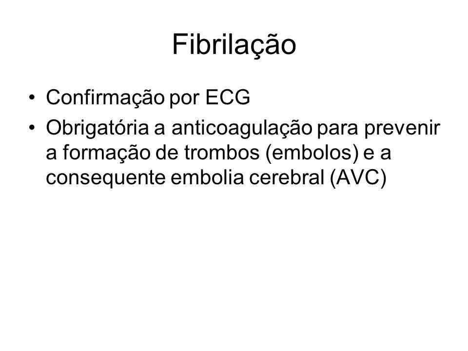 Fibrilação Confirmação por ECG