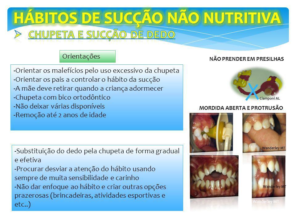 HÁBITOS DE SUCÇÃO NÃO NUTRITIVA