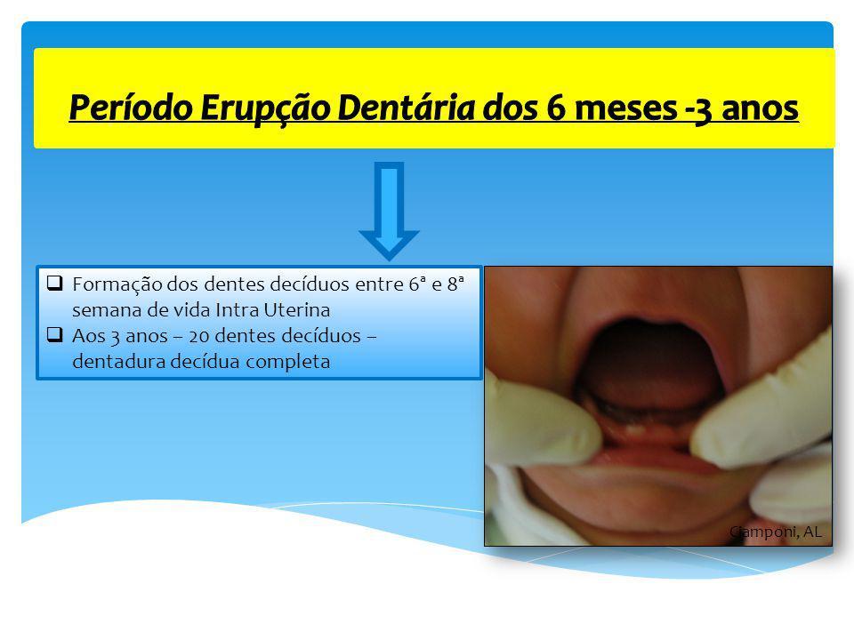Período Erupção Dentária dos 6 meses -3 anos