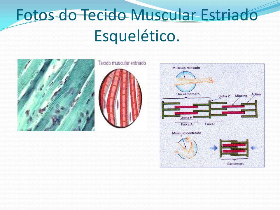Fotos do Tecido Muscular Estriado Esquelético.