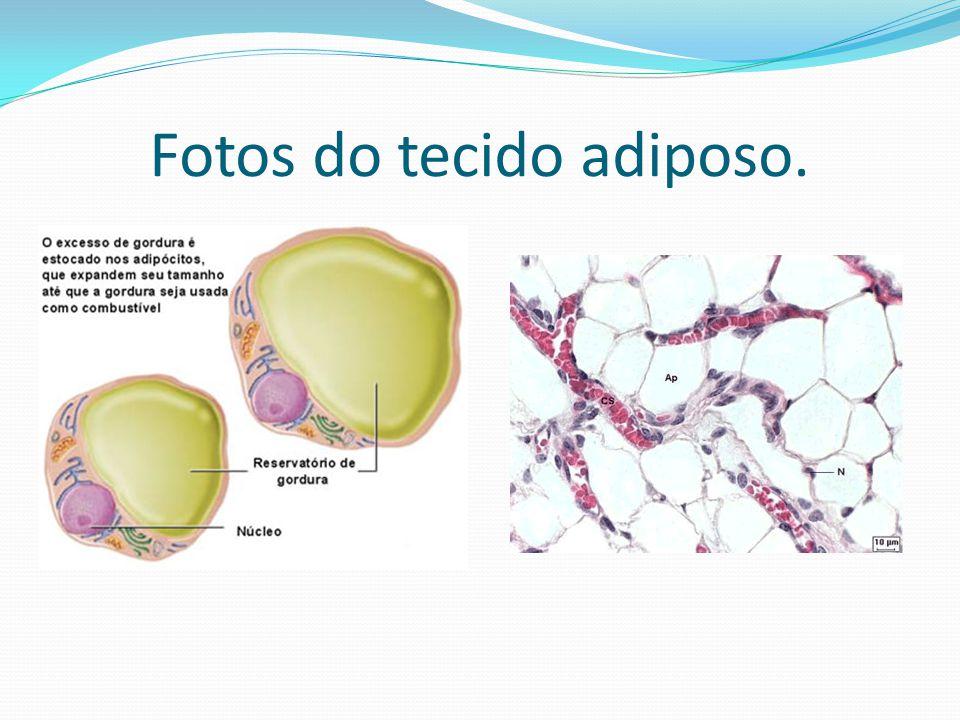 Fotos do tecido adiposo.