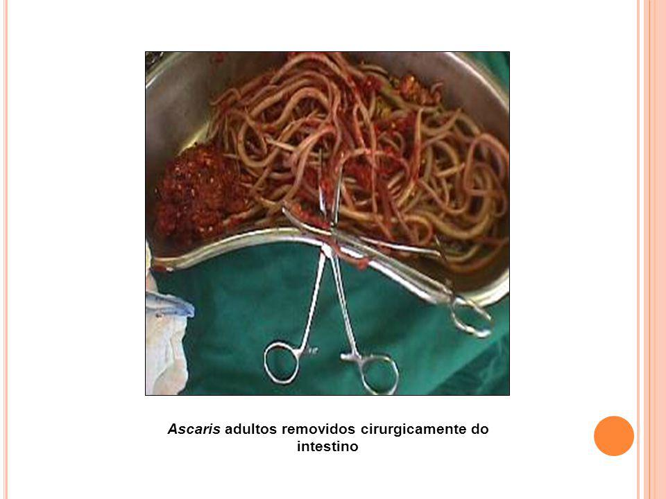 Ascaris adultos removidos cirurgicamente do intestino