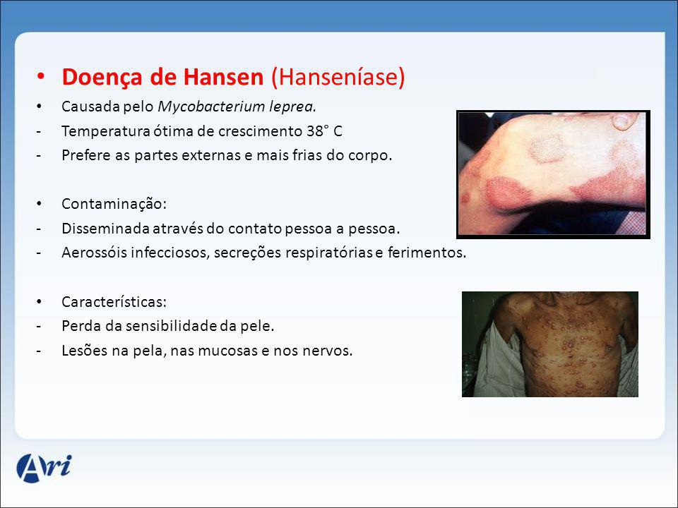Doença de Hansen (Hanseníase)