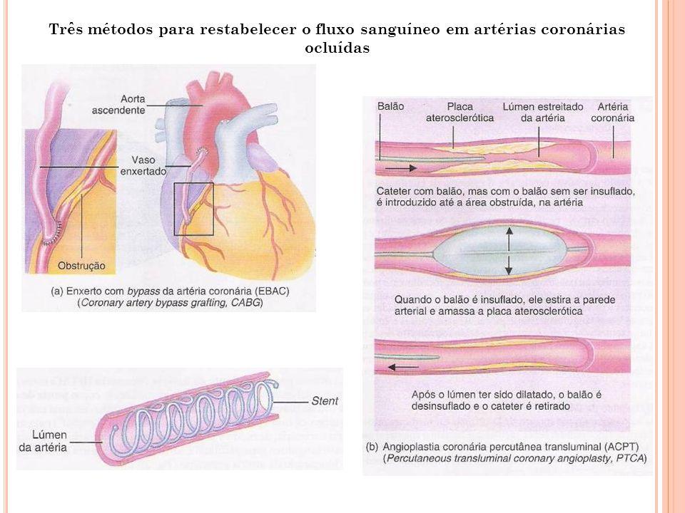 Três métodos para restabelecer o fluxo sanguíneo em artérias coronárias ocluídas
