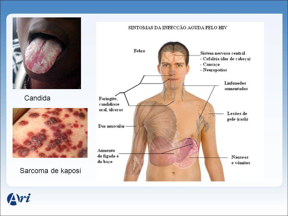 Candida Sarcoma de kaposi