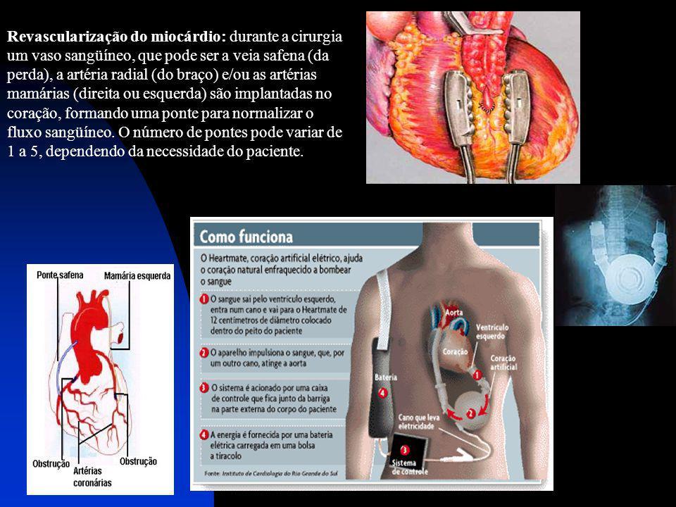 Revascularização do miocárdio: durante a cirurgia um vaso sangüíneo, que pode ser a veia safena (da perda), a artéria radial (do braço) e/ou as artérias mamárias (direita ou esquerda) são implantadas no coração, formando uma ponte para normalizar o fluxo sangüíneo.