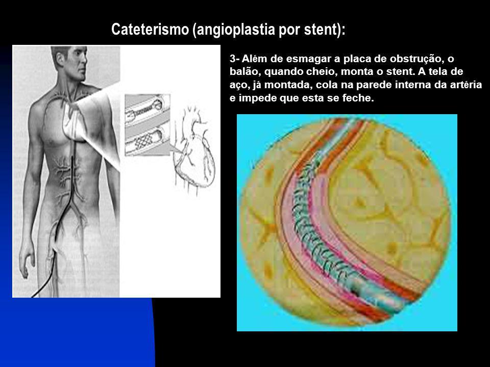 Cateterismo (angioplastia por stent):