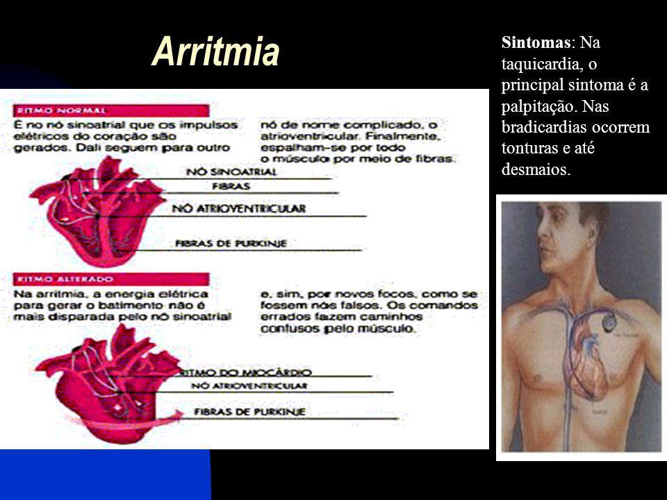 Arritmia Sintomas: Na taquicardia, o principal sintoma é a palpitação.