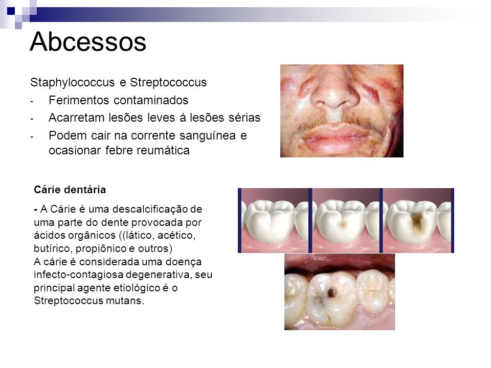 Abcessos Staphylococcus e Streptococcus Ferimentos contaminados