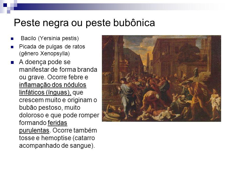 Peste negra ou peste bubônica