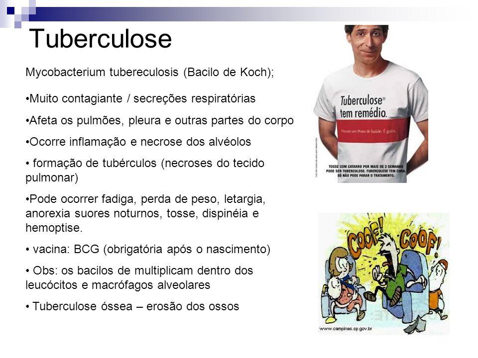 Tuberculose Mycobacterium tubereculosis (Bacilo de Koch);
