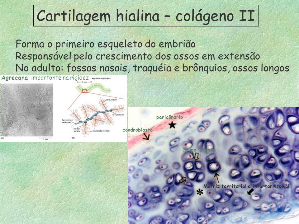 Cartilagem hialina – colágeno II