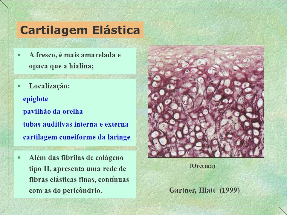 Cartilagem Elástica A fresco, é mais amarelada e opaca que a hialina;