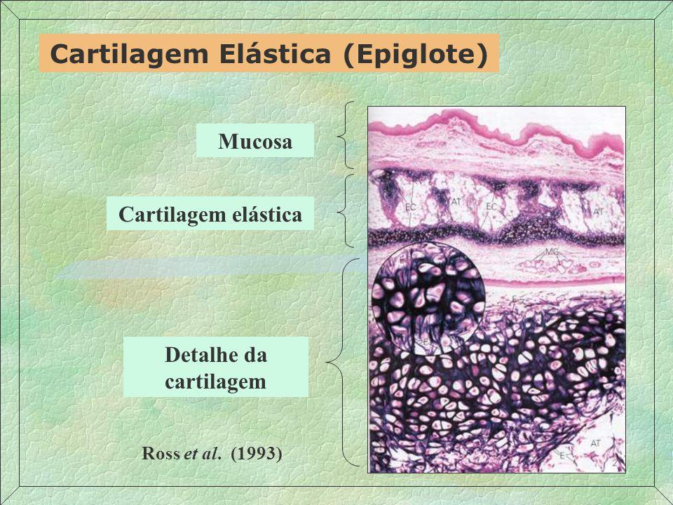 Cartilagem Elástica (Epiglote)