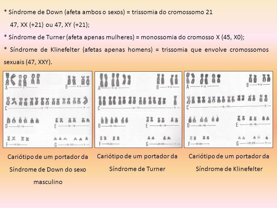 * Síndrome de Down (afeta ambos o sexos) = trissomia do cromossomo 21
