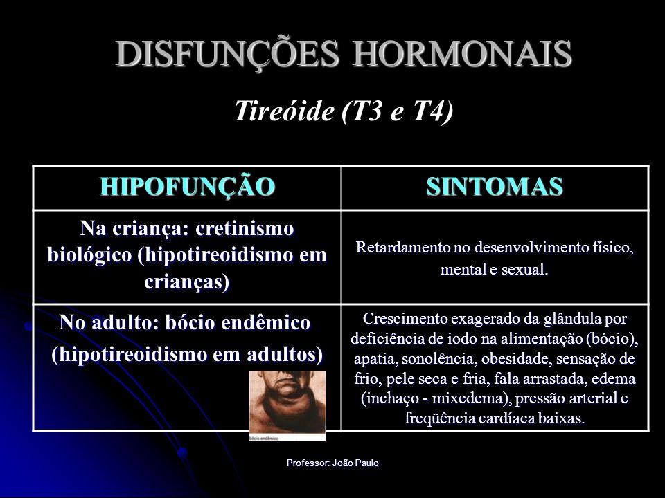 DISFUNÇÕES HORMONAIS Tireóide (T3 e T4) HIPOFUNÇÃO SINTOMAS