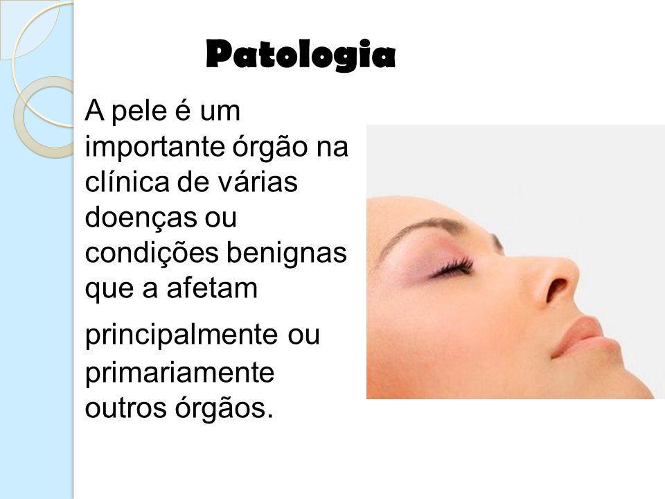 Patologia A pele é um importante órgão na clínica de várias doenças ou condições benignas que a afetam principalmente ou primariamente outros órgãos.