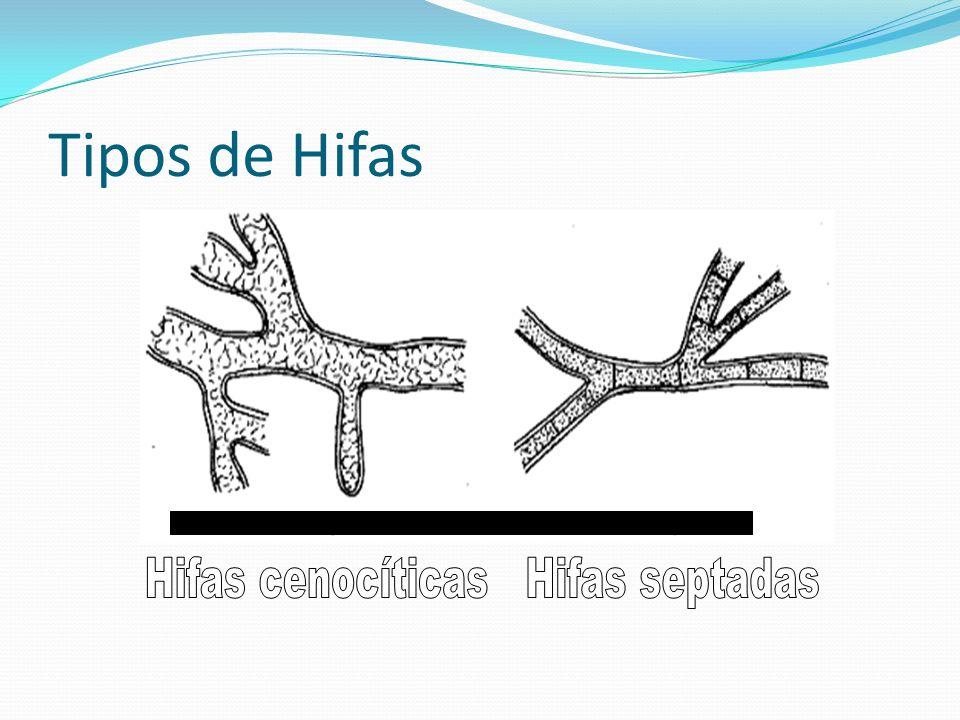 Hifas cenocíticas Hifas septadas