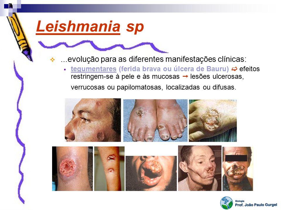 Leishmania sp ...evolução para as diferentes manifestações clínicas: