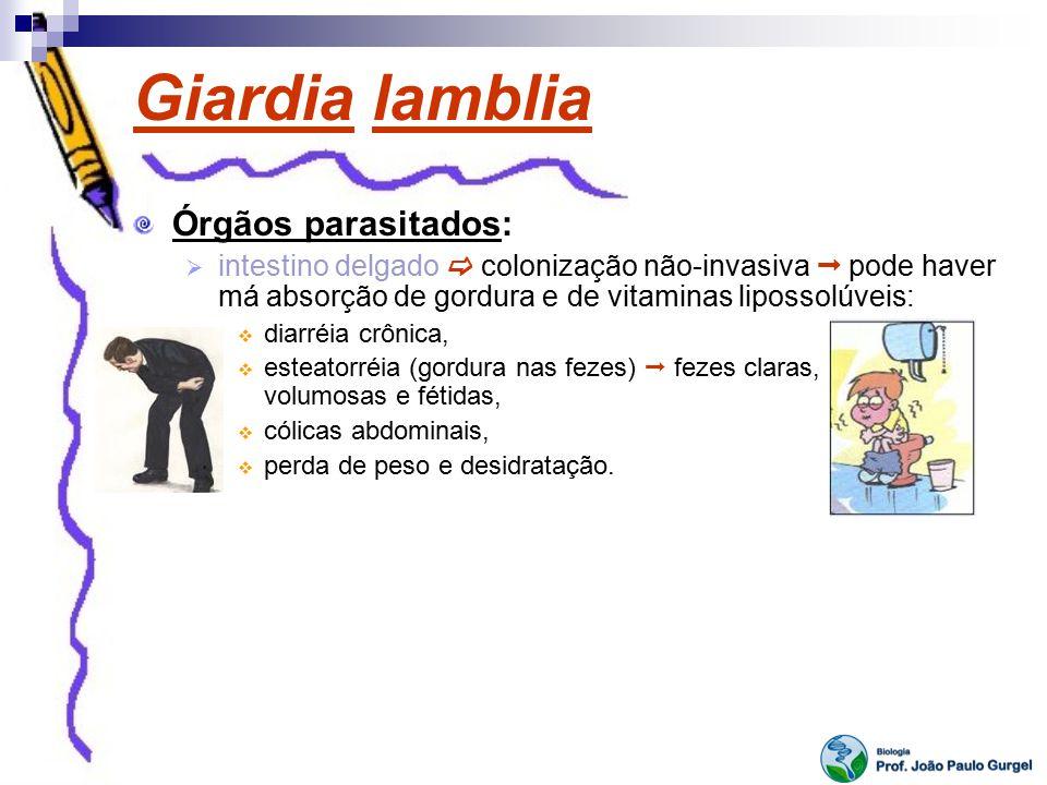 Giardia lamblia Órgãos parasitados:
