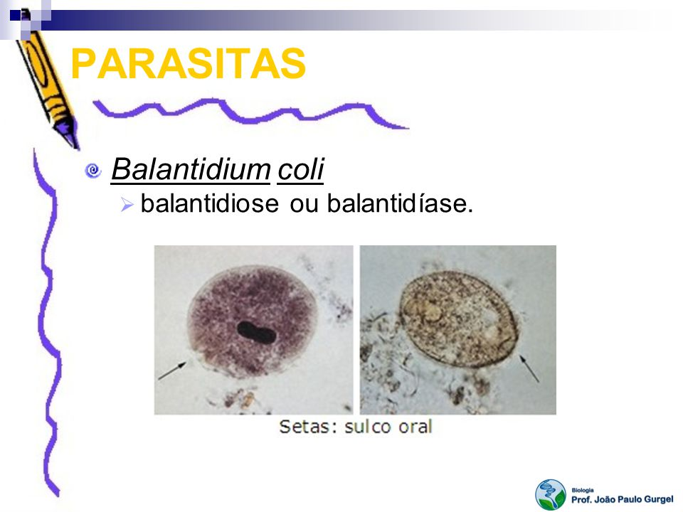PARASITAS Balantidium coli balantidiose ou balantidíase.
