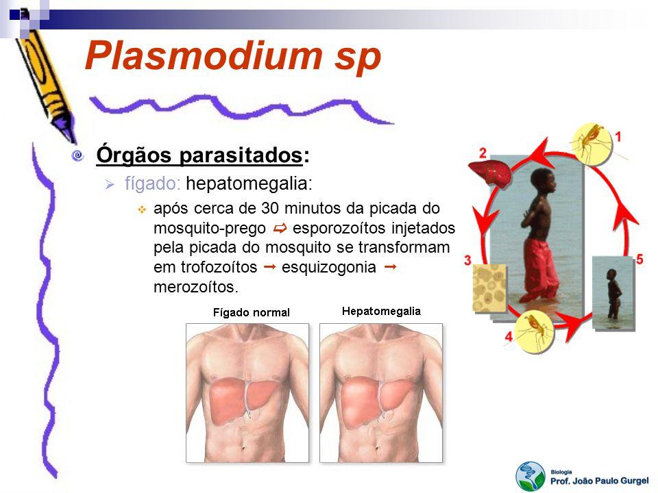 Plasmodium sp Órgãos parasitados: fígado: hepatomegalia: