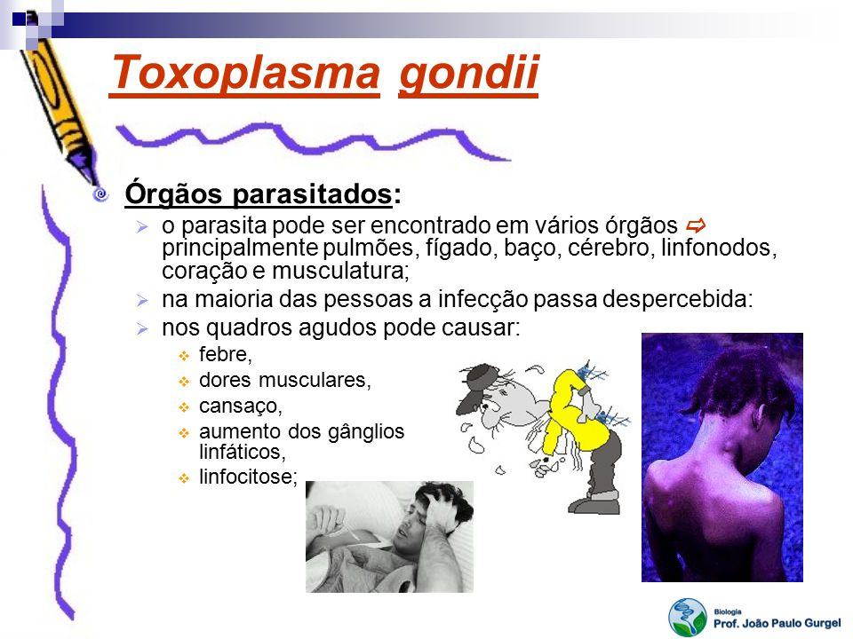 Toxoplasma gondii Órgãos parasitados: