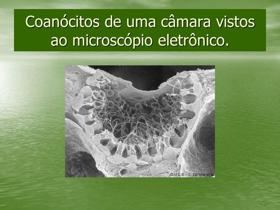 Coanócitos de uma câmara vistos ao microscópio eletrônico.