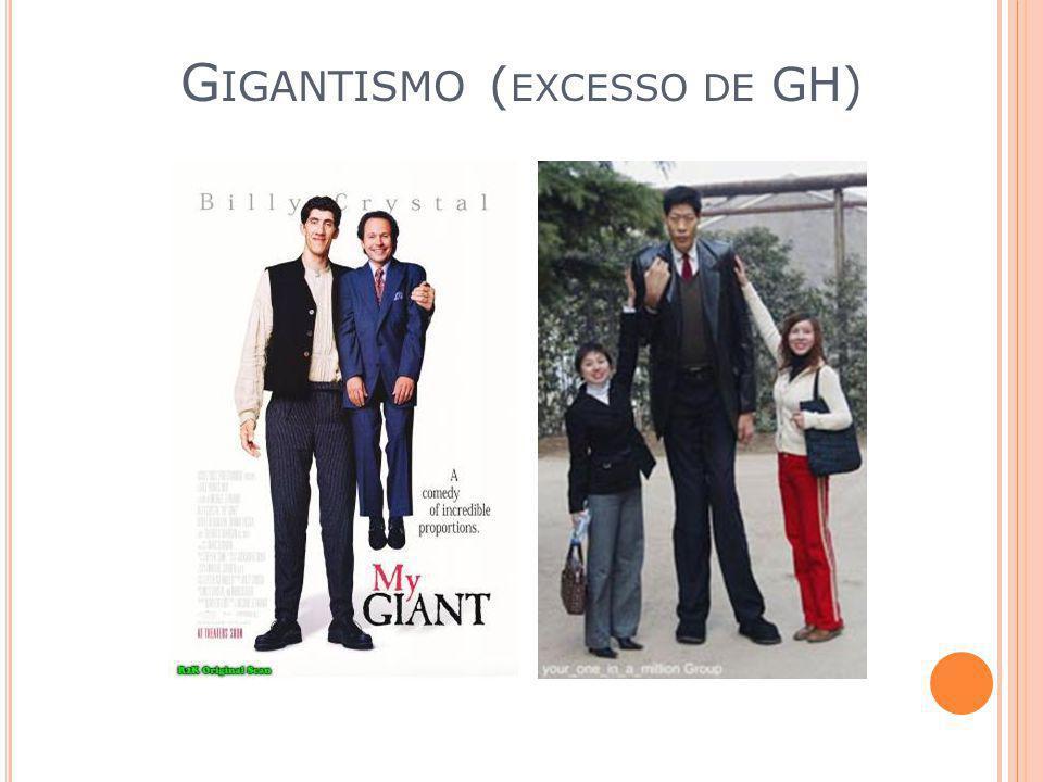 Gigantismo (excesso de GH)
