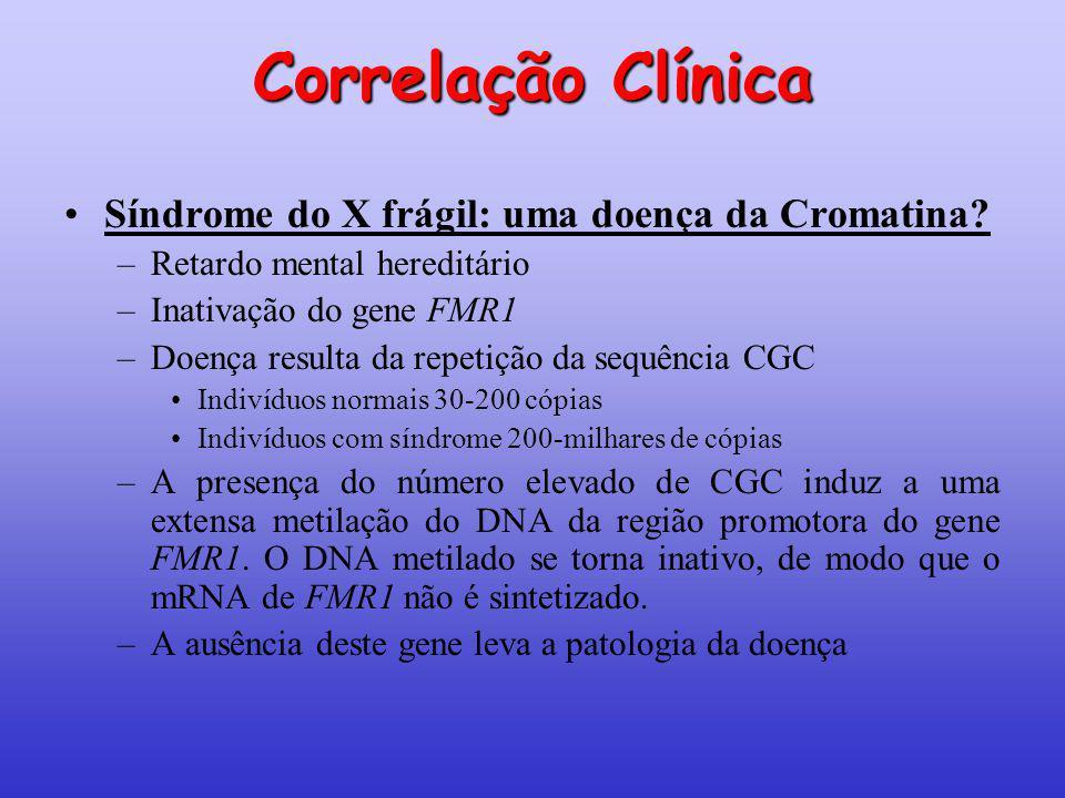 Correlação Clínica Síndrome do X frágil: uma doença da Cromatina