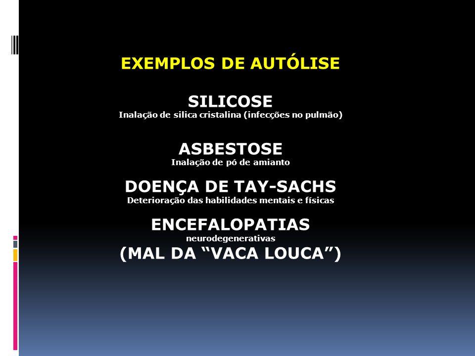 EXEMPLOS DE AUTÓLISE SILICOSE ASBESTOSE DOENÇA DE TAY-SACHS
