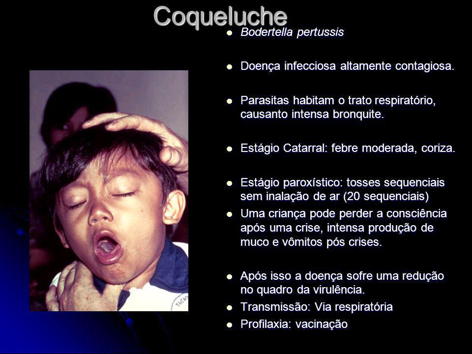 Coqueluche Bodertella pertussis