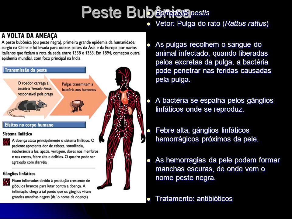 Peste Bubônica Bortedella pestis Vetor: Pulga do rato (Rattus rattus)
