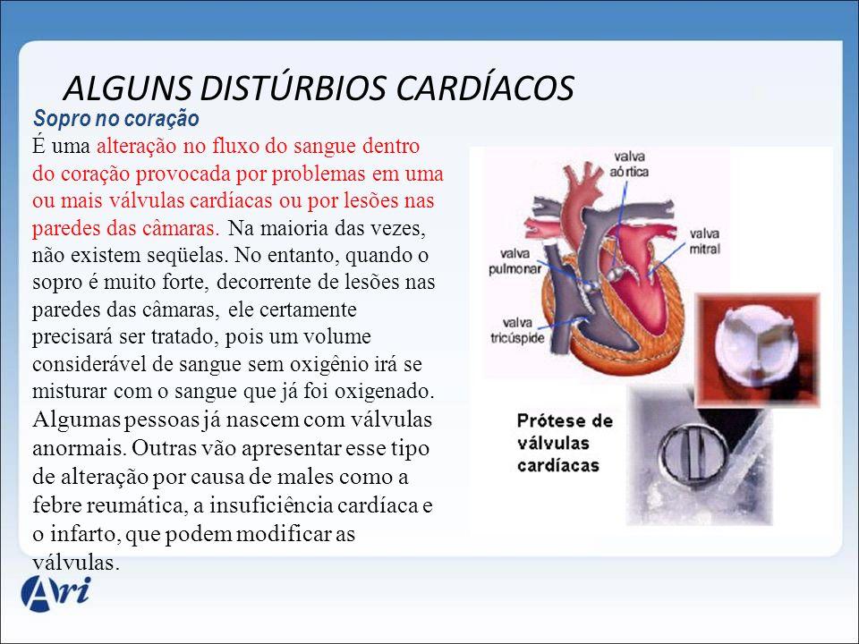 ALGUNS DISTÚRBIOS CARDÍACOS