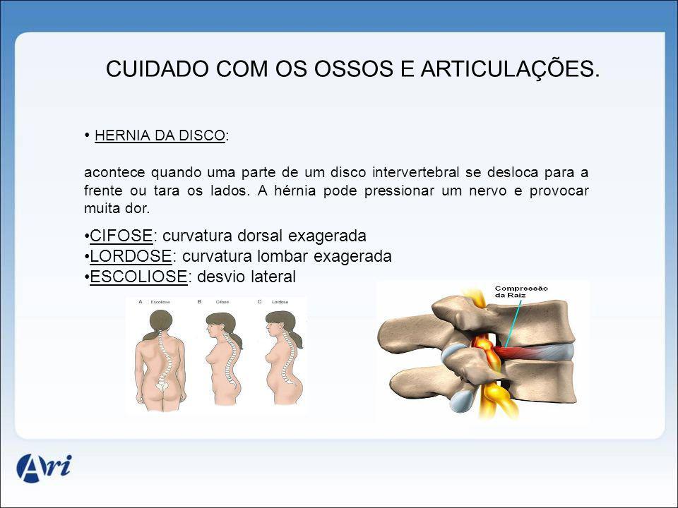 CUIDADO COM OS OSSOS E ARTICULAÇÕES.