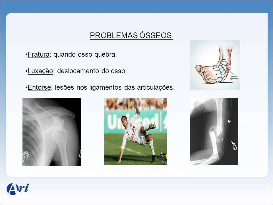 PROBLEMAS ÓSSEOS Fratura: quando osso quebra.