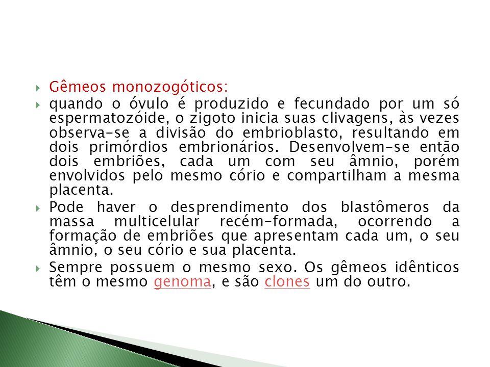 Gêmeos monozogóticos: