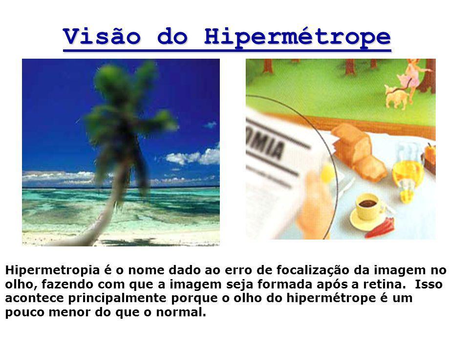 Visão do Hipermétrope