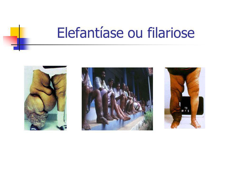 Elefantíase ou filariose