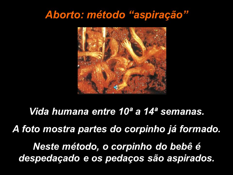 Aborto: método aspiração
