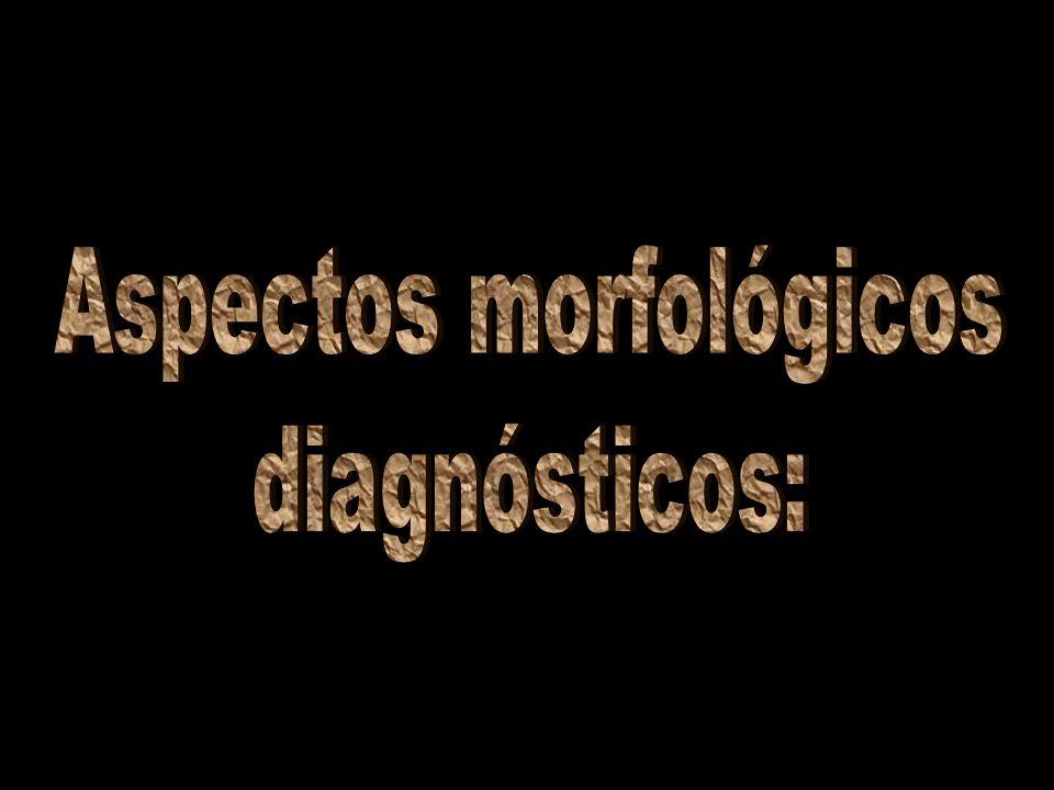 Aspectos morfológicos
